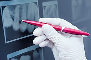 Pen pointing to digital dental x-rays